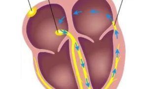 Что такое синдром ВПВ (WPW, Вольфа-Паркинсона-Уайта)