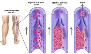 Признаки и симптомы тромба в ноге