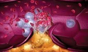 В каком случает тромб может рассосаться сам?