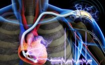 Симптомы, диагностика и лечение миграции водителя ритма