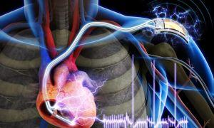 Комбинированный порок сердца: причины, диагностика и лечение