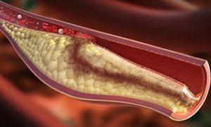 Диагностика окклюзии: как распознать тромб в сосудах