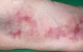 Гранулематоз Вегенера: симптоматика, диагностика, лечение и прогнозы