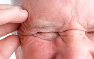 Гигантоклеточный височный артериит или болезнь Хортона: причины, признаки и тактика лечения
