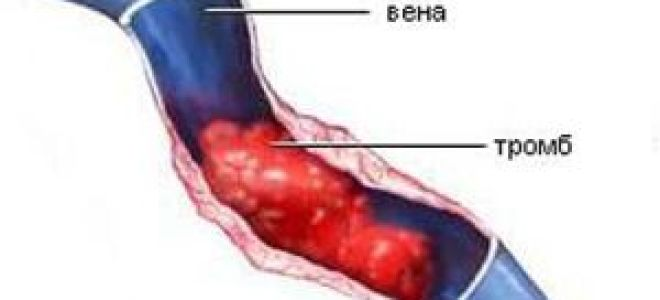 Тромбэктомия: виды операций по удалению тромба на ноге