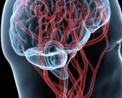 Атеросклероз сосудов головного мозга: симптомы лечение и профилактика ишемического инсульта