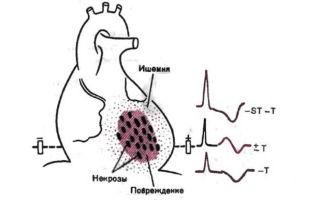 Что такое микроинфаркт и чем он опасен?