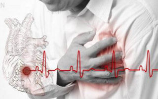 Особенности атипичных форм инфаркта миокарда