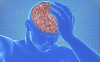 Симптомы, опасность и лечение отека мозга при инсульте