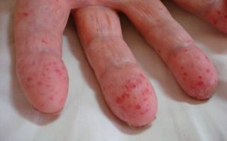 Геморрагический васкулит: проявления, причины и тактика лечения