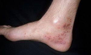 Васкулит АНЦА: разновидности, симптоматика и лечение