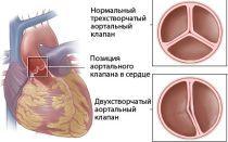 Что такое двустворчатый аортальный клапан?