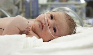 Причины и лечение кровоизлияния в мозг новорожденных