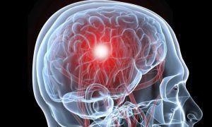Причины и признаки смерти от инсульта