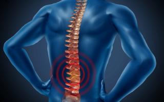 Понятие, симптомы и терапия спинального инсульта