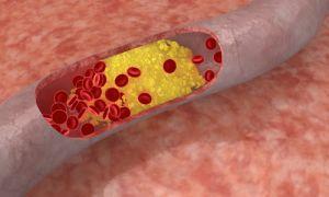 Применение тромболизиса при ишемическом инсульте: показания и противопоказания, виды