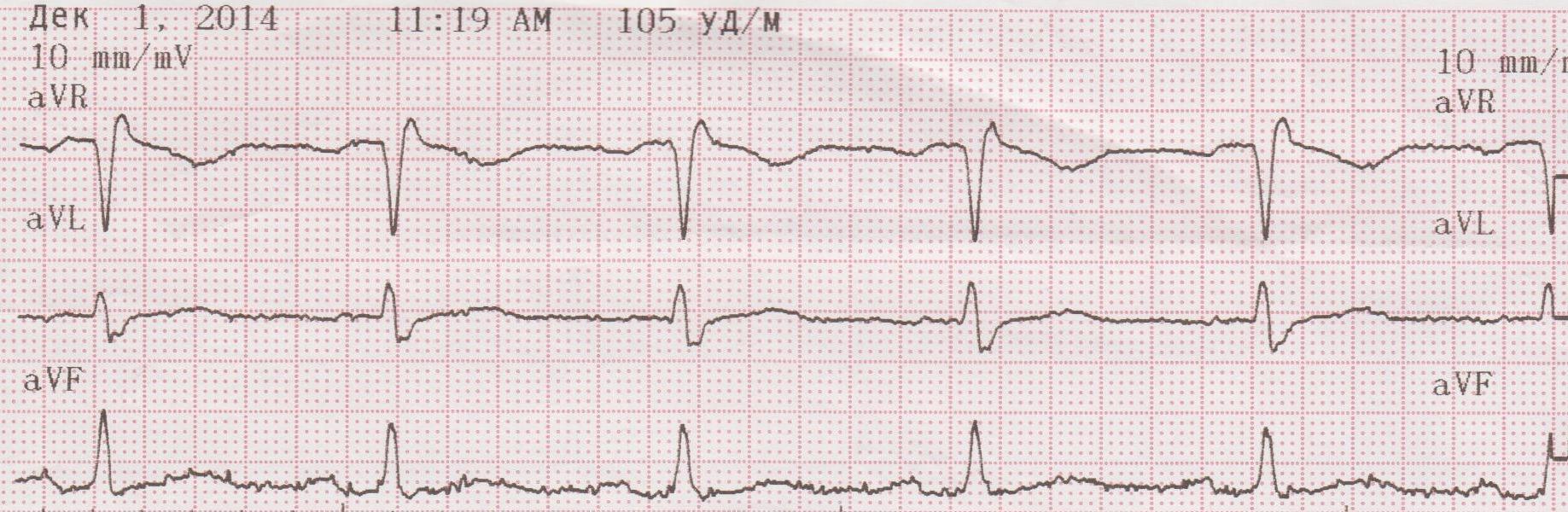 Дисметаболическая кардиомиопатия: причины, симптомы и лечение