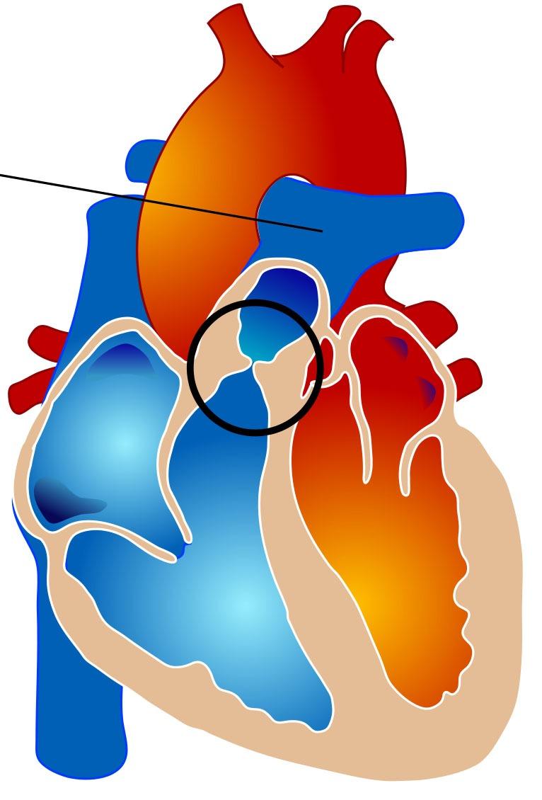 Недостаточность митрального клапана 1, 2 и 3 степени: лечение