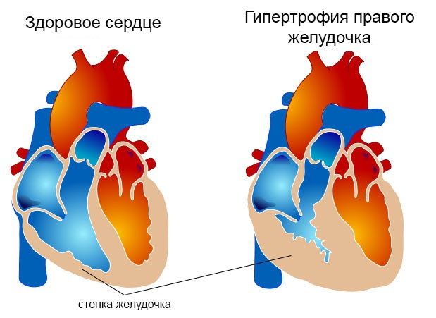 Гипертрофия правого желудочка - иллюстрация