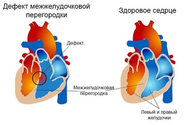 Сравнение здорового сердца и заболевания ДМЖП