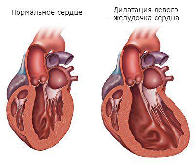 Здоровое сердце и сердце с дилатацией левого желудочка