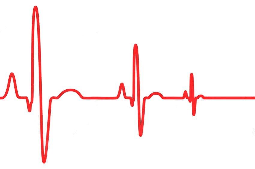 Остановка сердца: причины, виды, симптомы, экстренная помощь