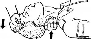 Подготовка к искуственному дыханию