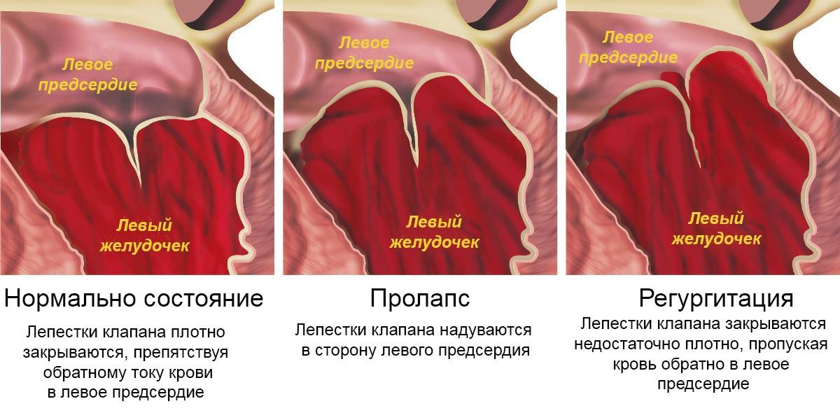 Здоровый клапан, пролапс и регургитация