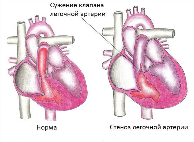 Вид здорового сердца и сердца с сужением клапана легочной артерии