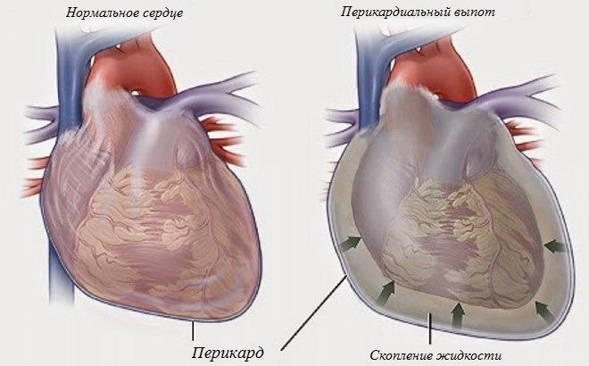 гидроперикард – болезнь или осложнение