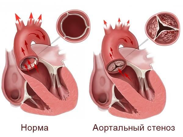 Врожденный порок сердца клапан ⋆ Лечение Сердца