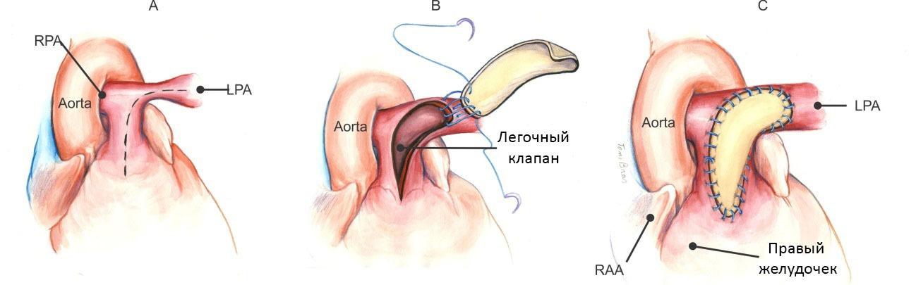 Лечение стеноза легочной артерии хирургическим способом