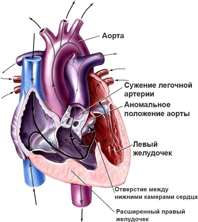 Белые и синие пороки сердца у детей: отличия и особенности
