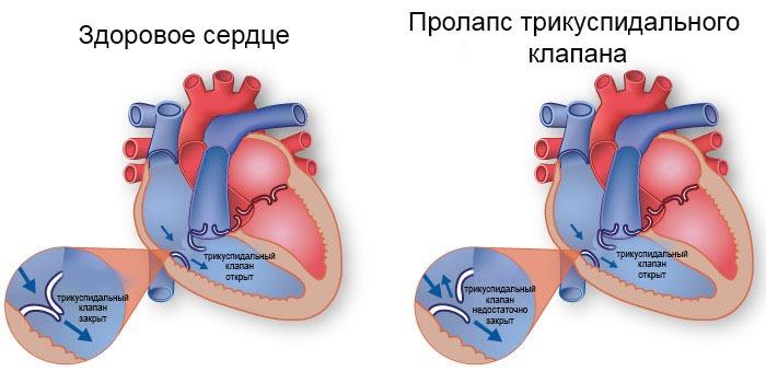 Здоровое сердце и с пролапсом трикуспидального клапана