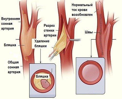 Оперативное лечение атеросклероза