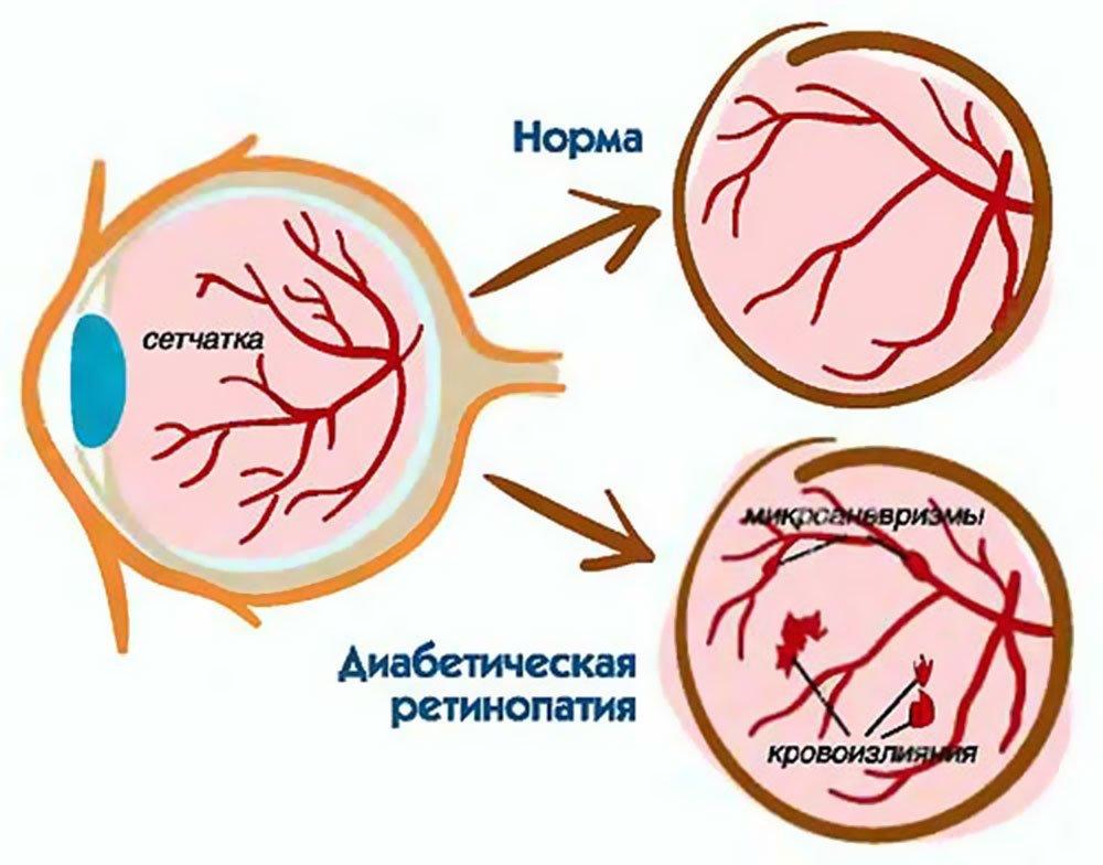 Симптомы и лечение диабетической ретинопатии: Все стадии.