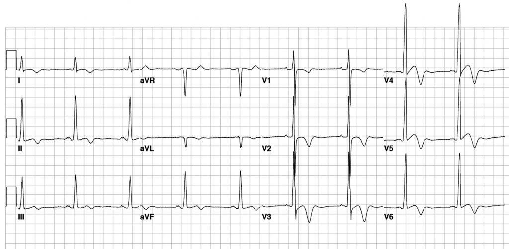 ЭКГ больного гипертрофической кардиомиопатией