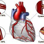 Ишемическая болезнь серзца