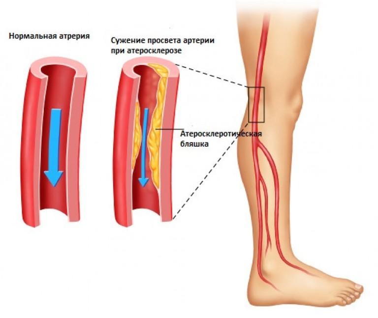 Проявление атеросклероза на ногах