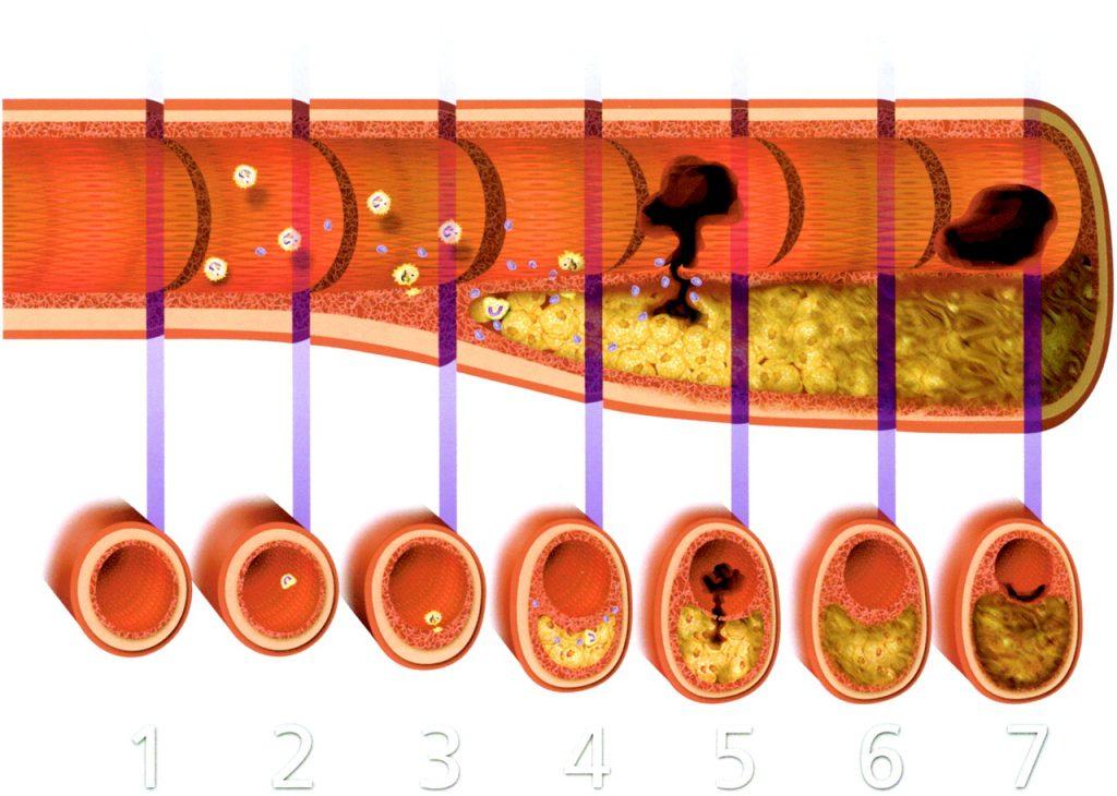 Атеросклероз аорты стадии