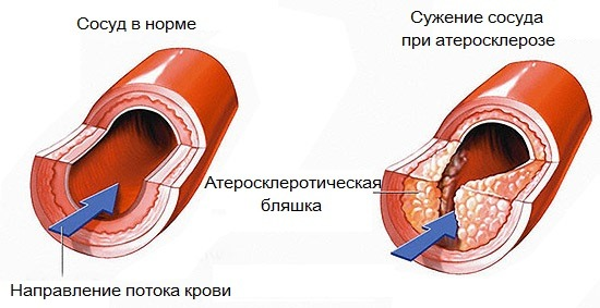 Сужение сосудов при атероклерозе