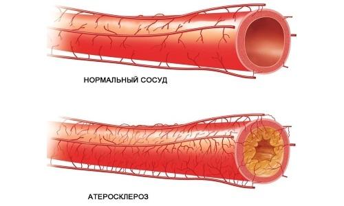 Нормальный сосуд и с атеросклерозом
