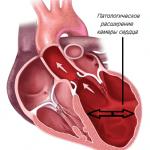 Гипертрофическая кардиомиопатия: причины, симптомы, лечение