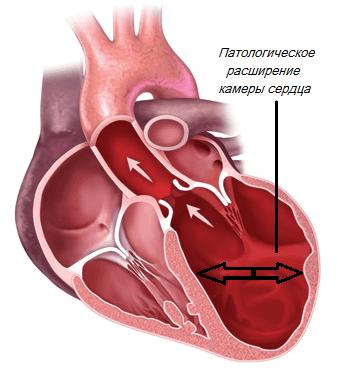 Дилатационная кардиомиопатия: причины, виды, симптомы, лечение