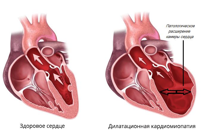 Дилатационная кардиомиопатия характеризуется увеличением камер сердца