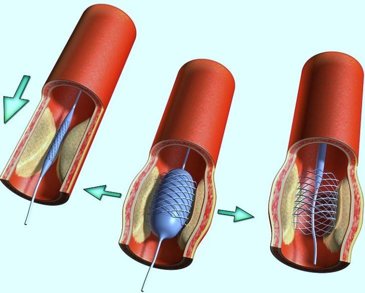 Метод лечения макро и микро ангиопатии сосудов