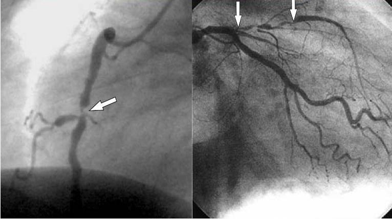 Атеросклероз сосудов сердца: симптомы, диагностика и лечение