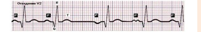 ЭКГ нарушения сердечного ритма