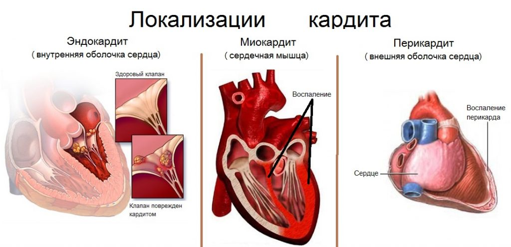 Кардит: неревматический, ревматический, у детей, лечение