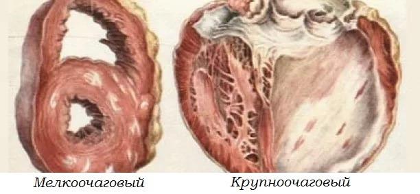 Постинфарктный кардиосклероз - причина смерти или возможность выжить?